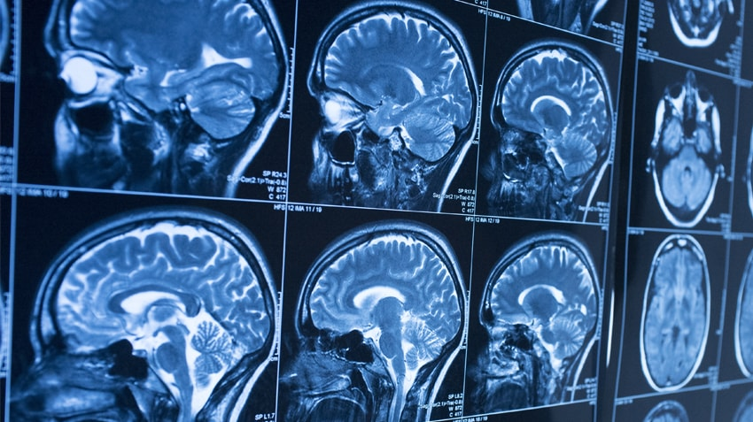 brain cancer essay Epilepsy is a serious neurological disorder marked by sudden recurrent episodes of sensory disturbance, loss of consciousness, or convulsions, associated with abnormal electrical activity in the brain.