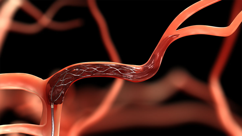 Removing Blood Clots From the Brain | Michigan Health Lab