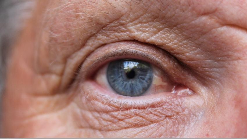 Close up of an eye suffering from wet age related macular degeneration (wet AMD)