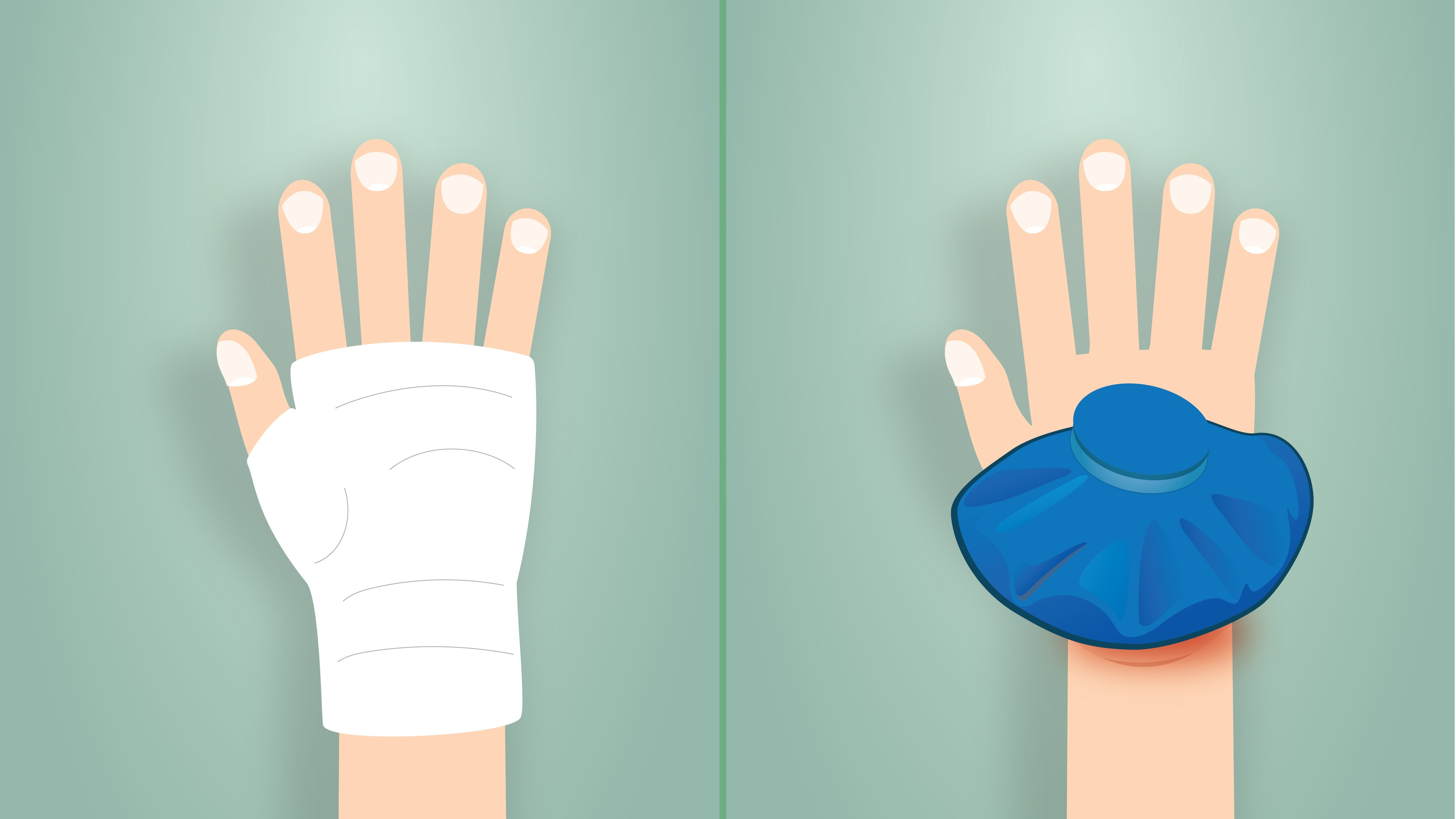 Two different hand injuries requiring acute care