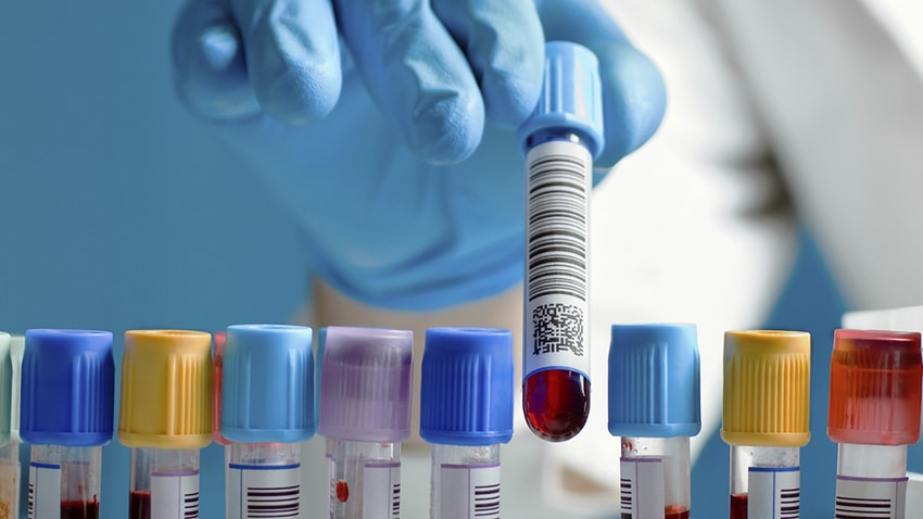 Blood tests for inherited thrombophilia