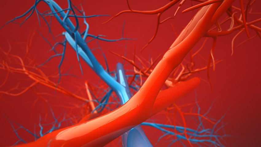The simulated blood vessels of a jugular vein aneurysm