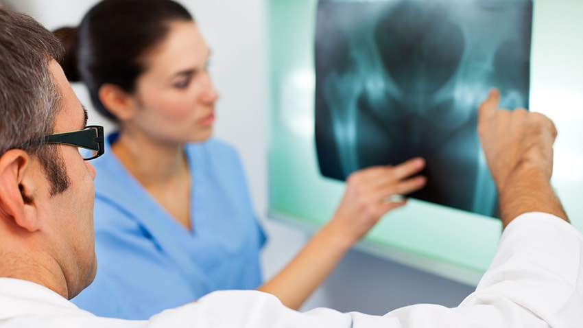 Doctors looking at an x-ray of postmenopausal bone loss