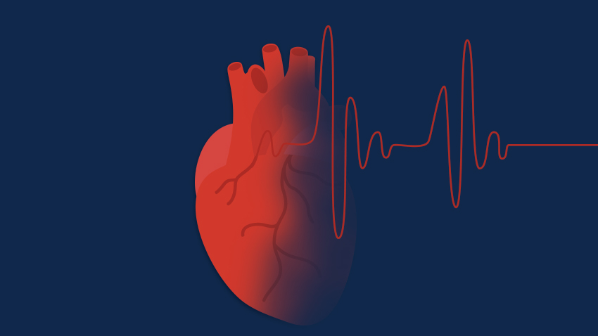 Graphic of a heart with atrial fibrillation