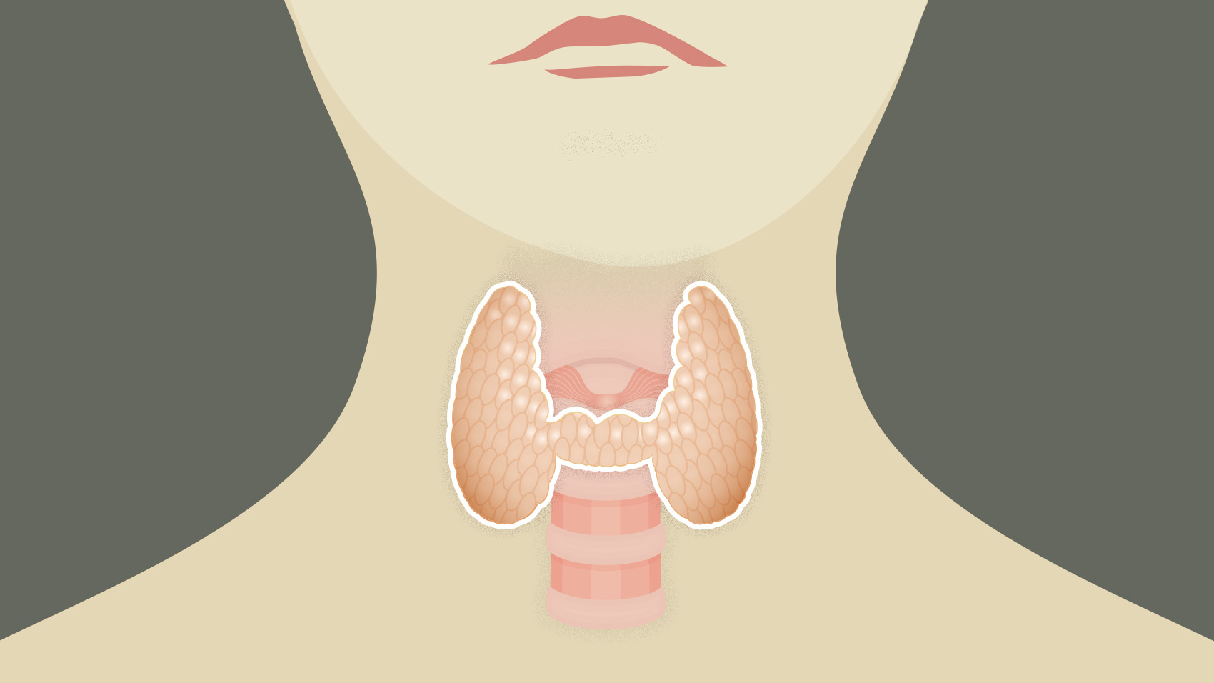 thyroid cancer Thyroid cancer is relatively uncommon compared to other cancers in the united states it is estimated that in 2016 approximately 64,000 new patients will be diagnosed with thyroid cancer, compared to over 240,000 patients with breast cancer and 135,000 patients with colon cancer.