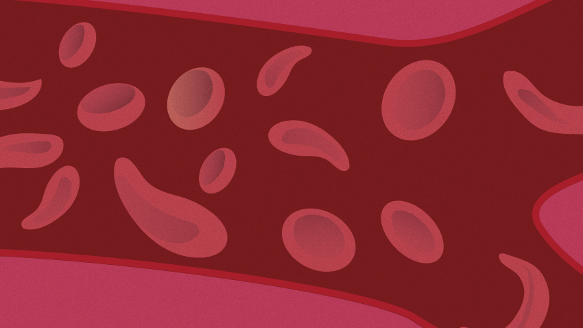 Most Children With Sickle Cell Anemia Not Receiving Key Medication