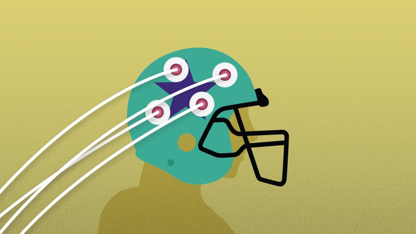 Concussions Are Brain Injuries Sit Your >> Football Head Impact Raises Biomarkers For Brain Injury