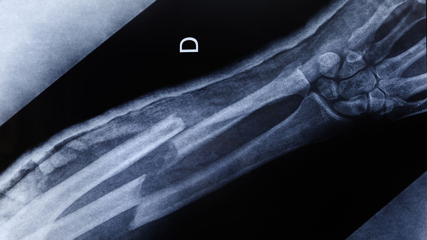 Xray of a broken arm