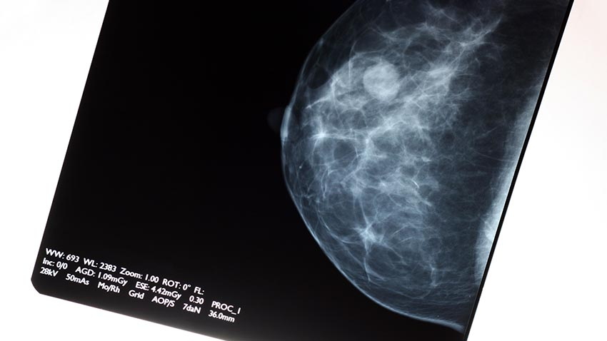 Breast cancer scan image