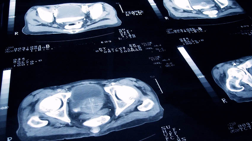 Prostate cancer scans