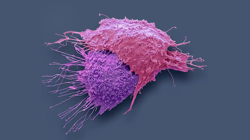 Ovarian Cancer Cells
