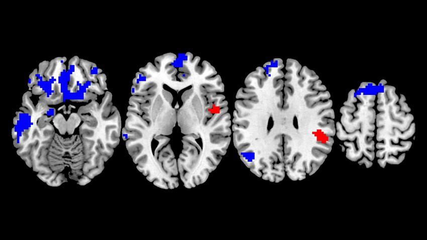 Brain scans of OCD.