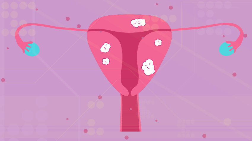 drawing of pink uterus with white fibroid spots on a light purple background