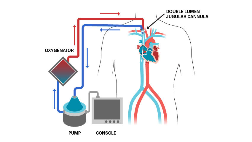 oxygenator, pump, console, double lumen jugular cannula diagram of ECMO