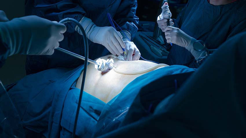 image of surgery happening above stomach with blue surgical drapes with surgical tools with white gloves removing appendix