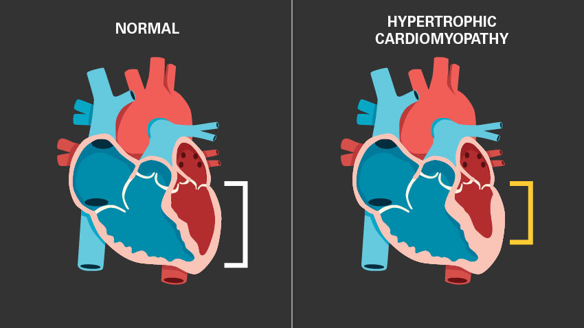 hypertrophic cardiomyopathy and normal heart image in blue and red