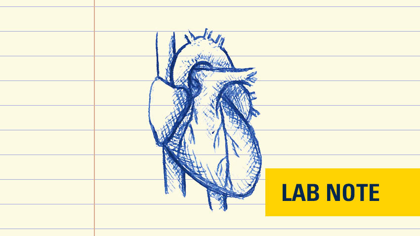 drawing of heart in blue ink on lined yellow paper with words lab note on bottom right in yellow and blue font