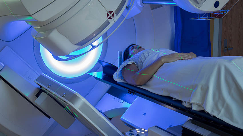 Radiation therapy of young women breast cancer