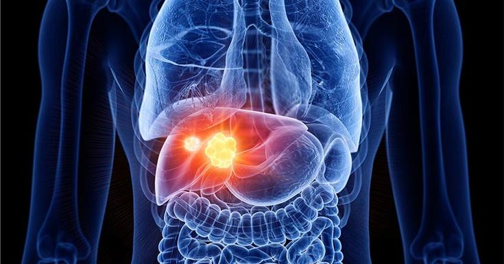 liver cancer red and orange in a blue body virtual drawing