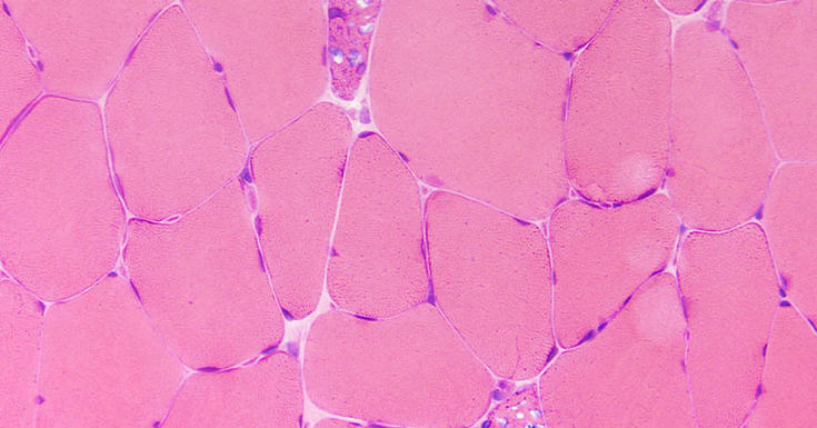 Pink Glycogen under microscope