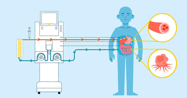 light blue background with machine on left connecting in darker light blue and red lines into patient who is drawn in darker light blue with organs in circle on right