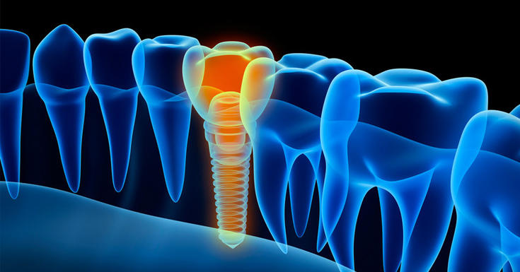 graphic of a yellow screw instead of a blue outlined tooth in an xray